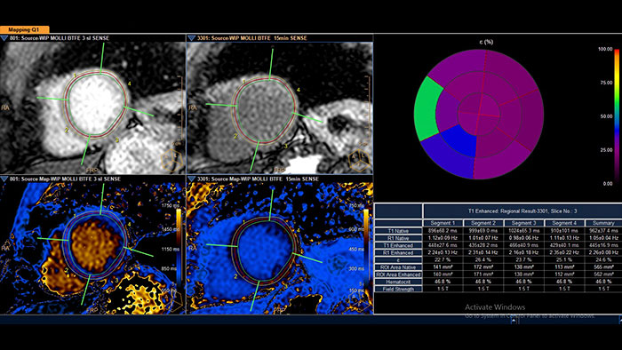 cardiac quantitative mapping thumbnail