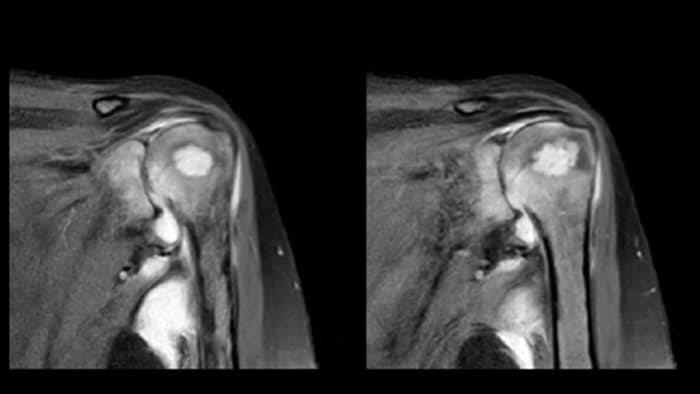 MRI of the shoulder on Ingenia Prodiva 1.5T