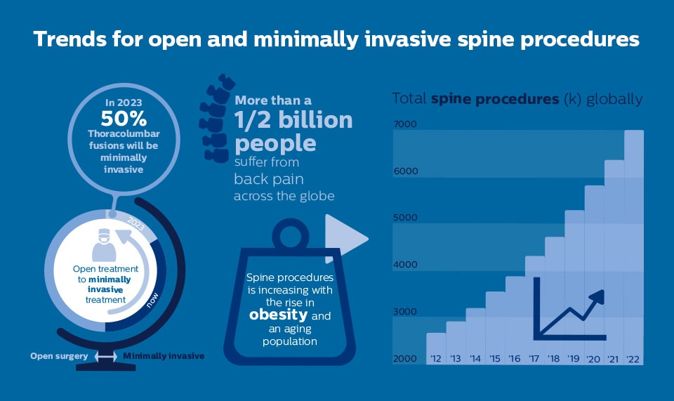 Spine Trends Infographic