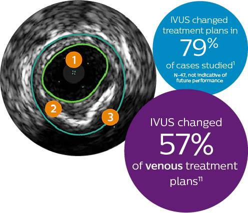 IVUS changed treatment