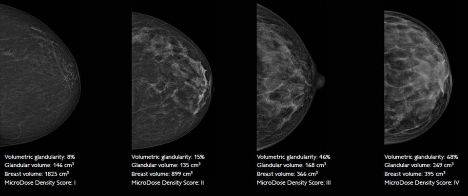 microdose si spectral imaging breast density measurements LM